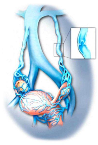 תסמונת גודש אגני - אפשרויות טיפול
