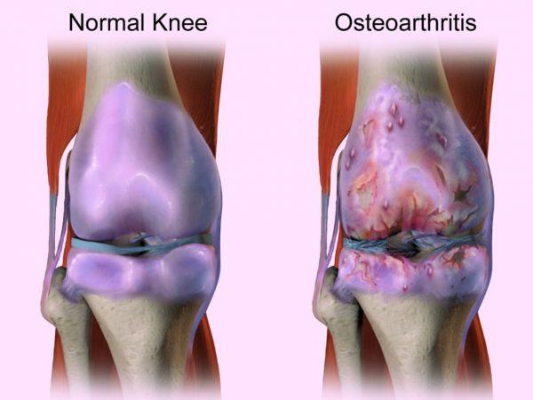 אוסטאוארטריטיס - כאבי מפרקים